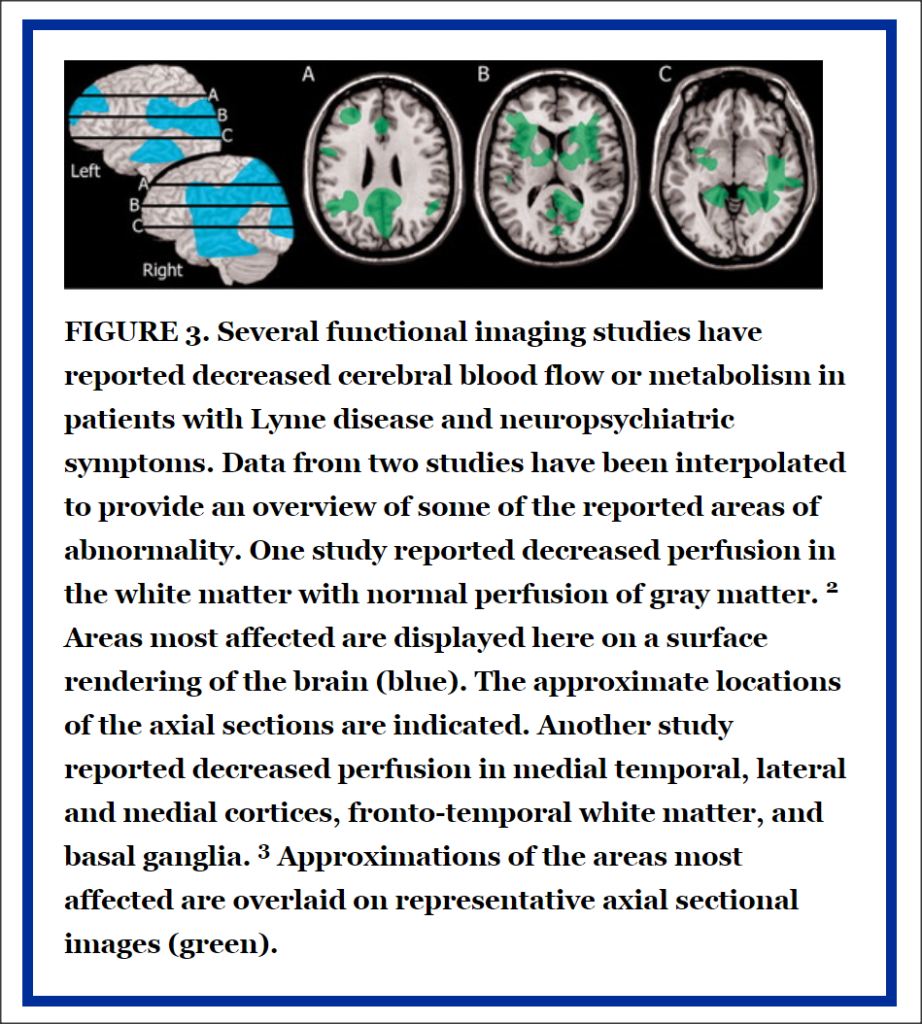 Areas of the brain affected by Lyme